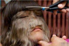 世界上体毛最多的人:美国艾米丽·苏珊