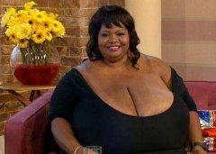 世界最大的天然胸围女人,斯蒂斯拥有36斤巨乳