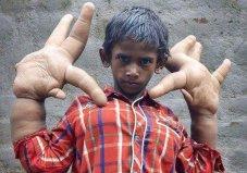世界罕见巨指症男孩,双手重达12.7公斤