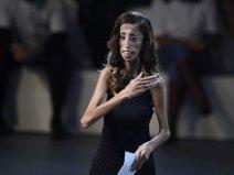 世界上最丑的女人,丽兹被称为骷髅女孩