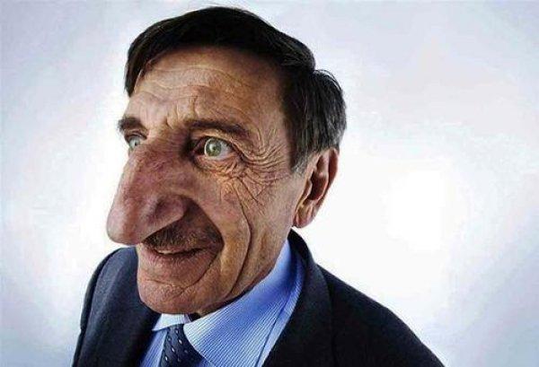 世界上鼻子最大的人,世界纪录是8.8厘米长