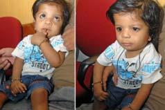 世界上手指和脚趾最多的人,印度男孩共34根